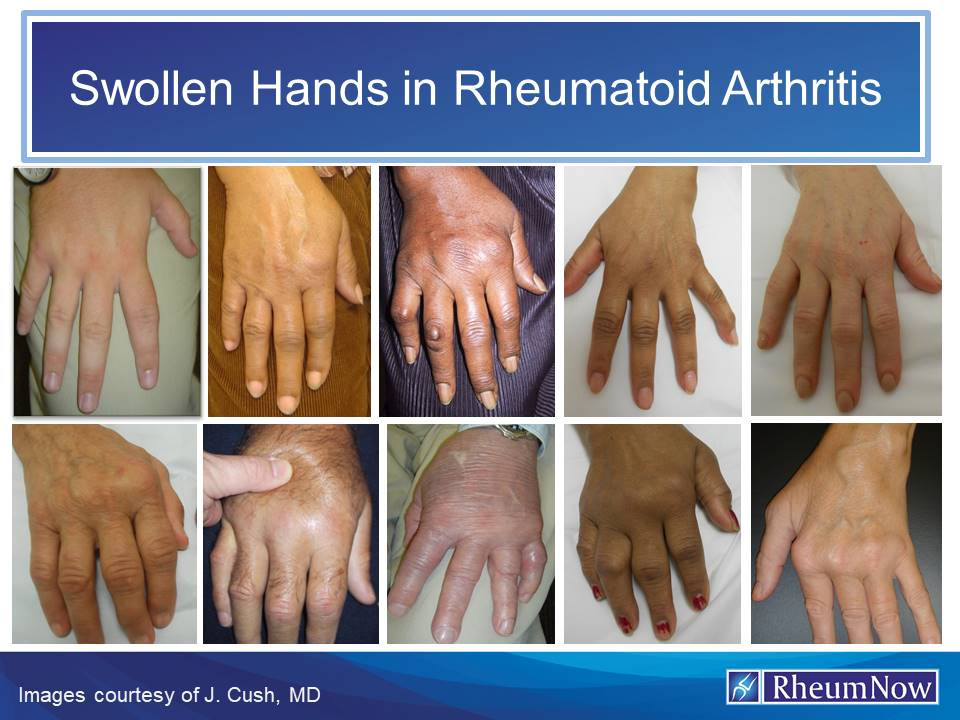 Swollen Hands In Rheumatoid Arthritis Rheumnow