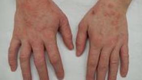 175px-Dermatitis2015.jpg