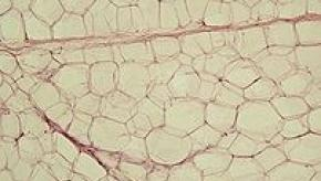 202px-Yellow_adipose_tissue_in_paraffin_section_-_lipids_washed_out.jpg