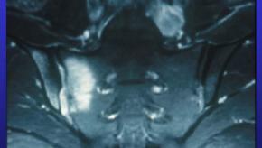 as.sacroiliitis.jpg