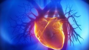 cardiac2.jpg (keep)
