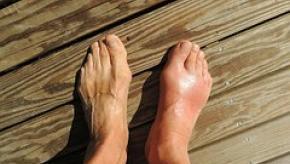 gout.feet_.jpg
