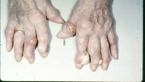 gout.tophi_.jpg