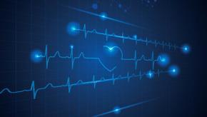 heart.EKG_.CVD_.jpg