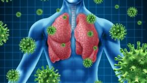 infx.pneumonia.jpg