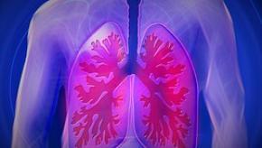 lung%2Cbright.jpg