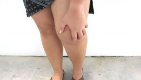 obesity.knee_.arthritis.jpg