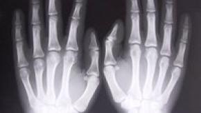 xray-of-hands-1526780.jpg