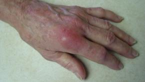 RA.gout.hand.MCP