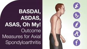 BASDAI, ASDAS, ASAS, Oh My: Outcome Measures for Axial Spondyloarthritis