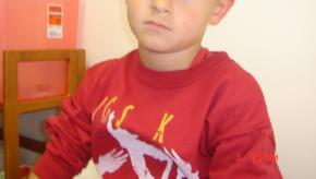 kid, lupus, pediatric