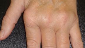 RA, hands, MCP, deformity