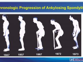 Chronologic Progression of Ankylosing Spondylitis