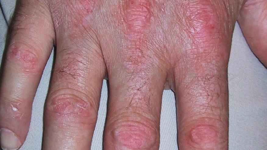 Calcineurin Inhibitors In Anti-Synthetase Dermatomyositis