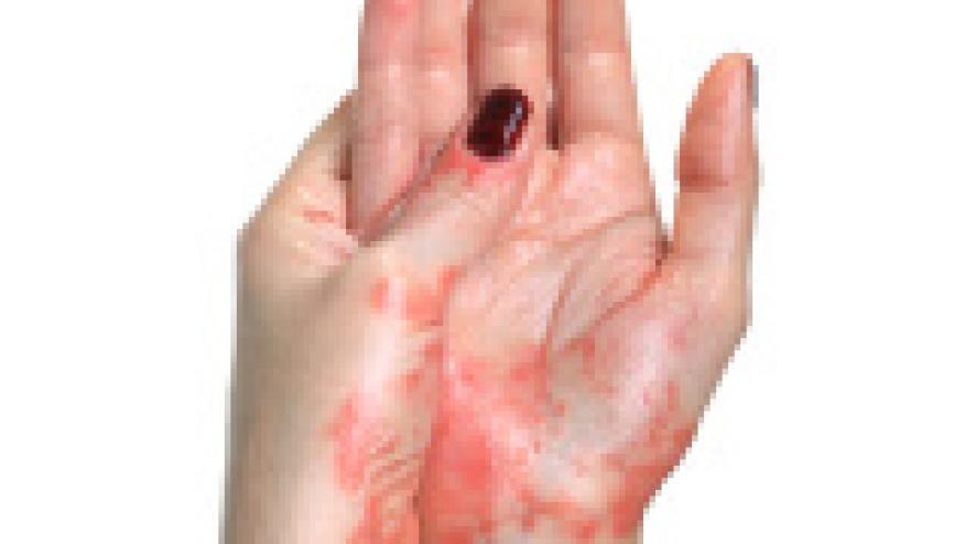 Dmard Switching In Psoriatic Arthritis Rheumnow