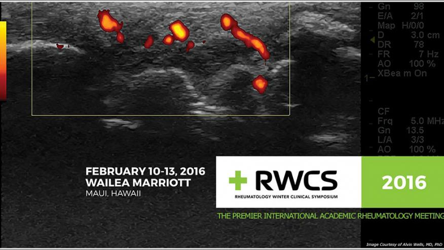 Power Doppler Ultrasound Detects Early Synovitis Change In Appraise Study Rheumnow