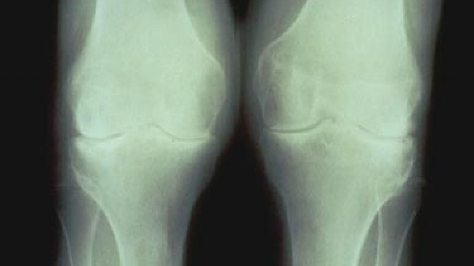 knee2_0.JPG (keep)