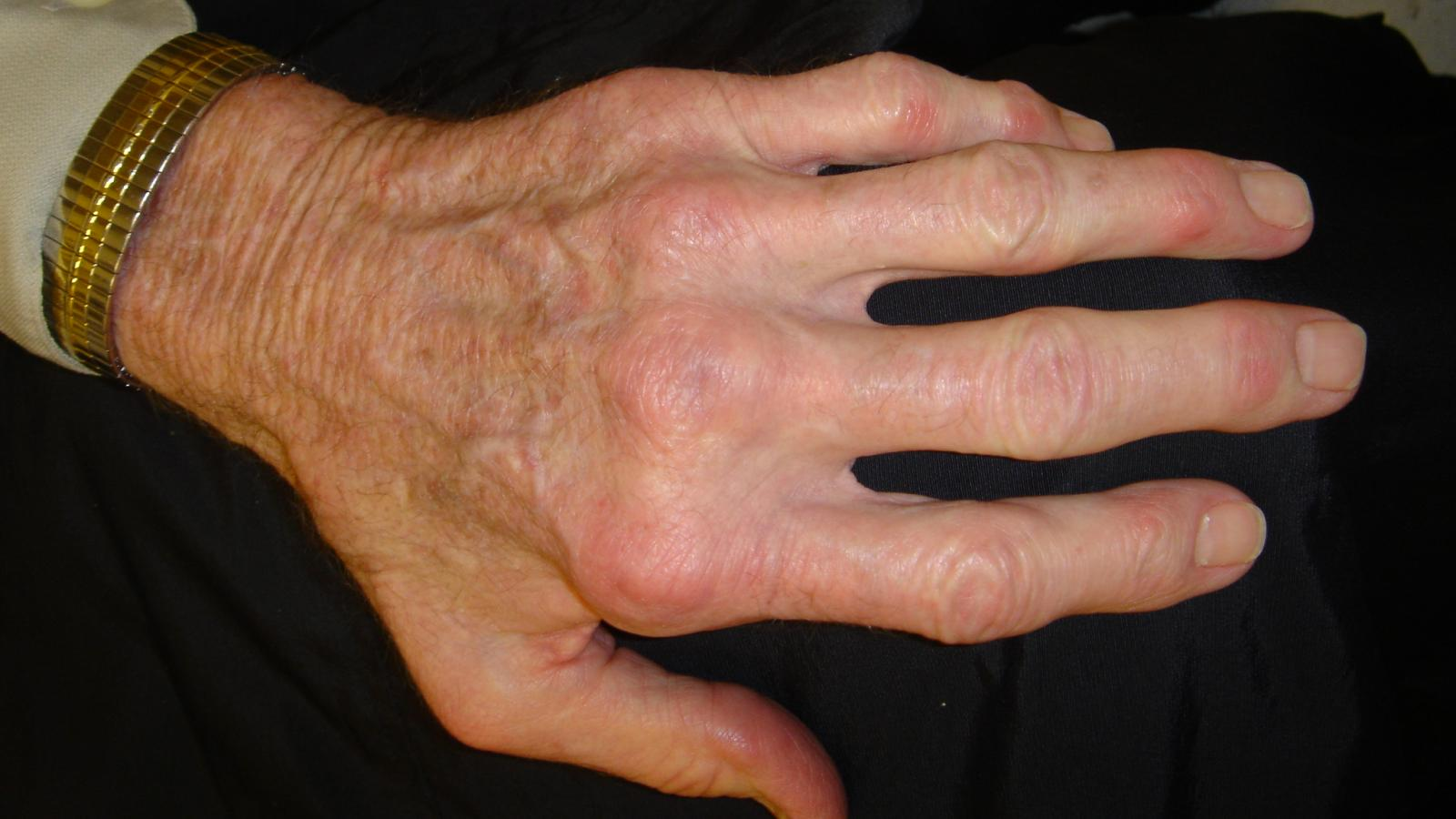 RA Hands Difficult deformity