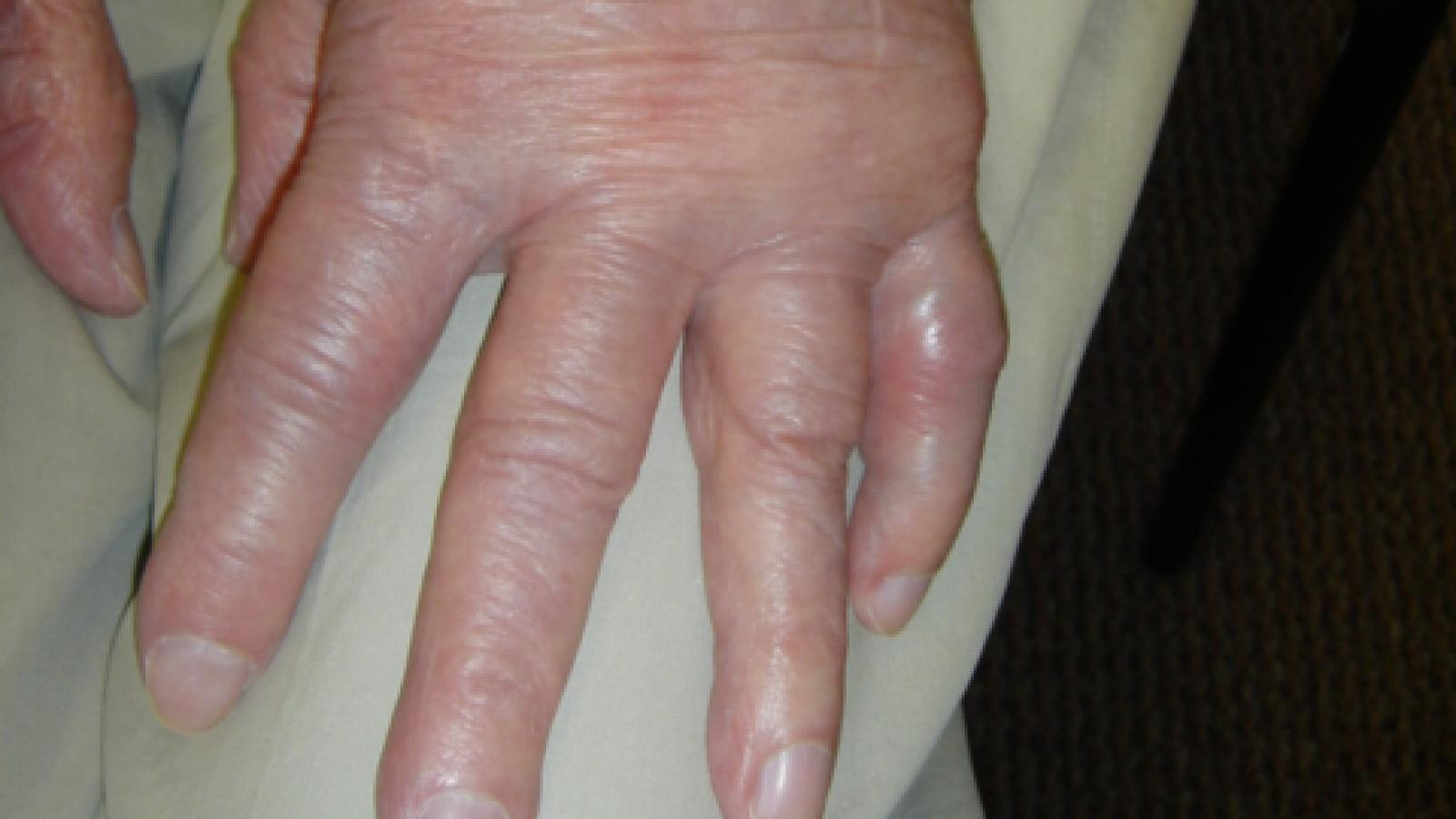RA,hand,elderly,active