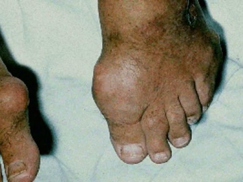 gout.podagra2.jpg