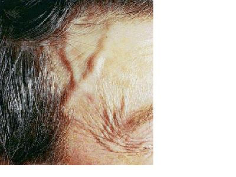 GCA temporal artery