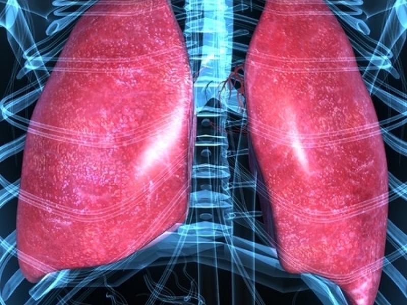 Lungs ILD