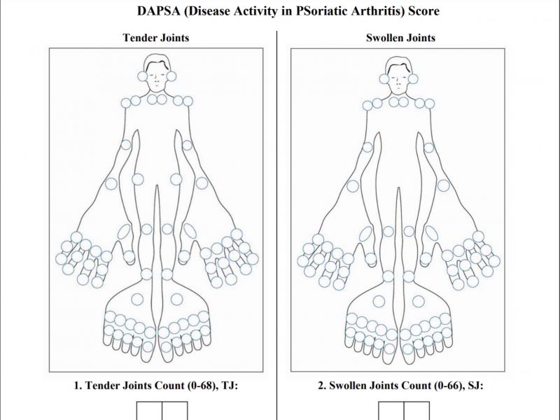DAPSA PsA measure